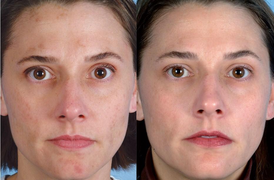 До и после ультразвуковой чистки