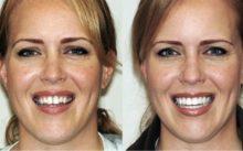 Выравнивание зубов брекетами — фото до и после