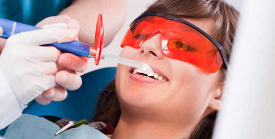 Профессиональная чистка зубов лазером