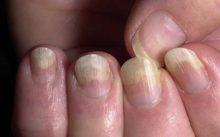 Грибок ногтей на руках – лечение, профилактика и отзывы