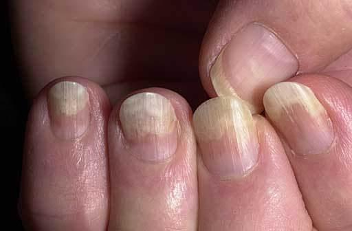 Грибок под ногтем - симптомы, виды и стадии заболевания: методы и средства от поражения, отзывы о лечении