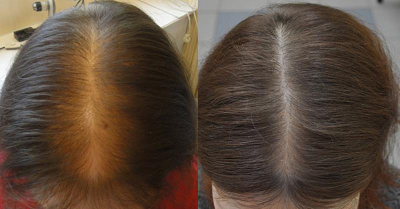 До и после применения репейного масла