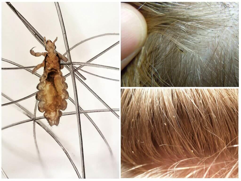 Как выглядят вши на голове