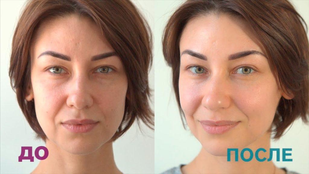 Фотографии до и после микротоков