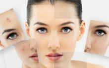 Чем вывести пигментные пятна на лице