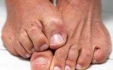 Препараты против грибка ногтей