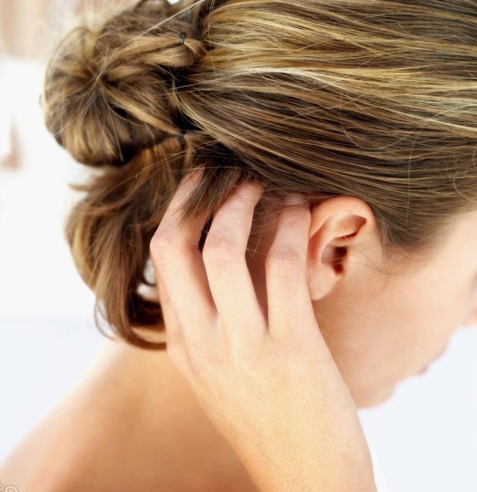 Почему появляются прыщи на голове в волосах?